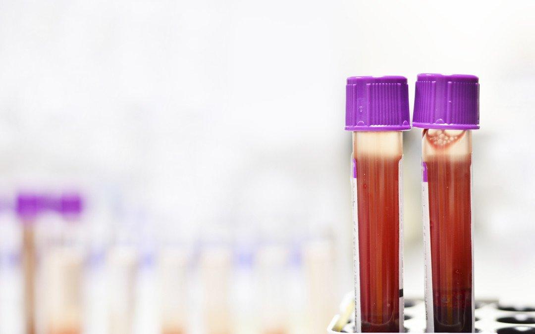 La leucemia mieloide acuta