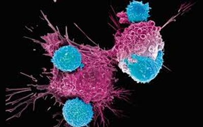 CAR-T cells: speranze concrete contro i tumori del sangue